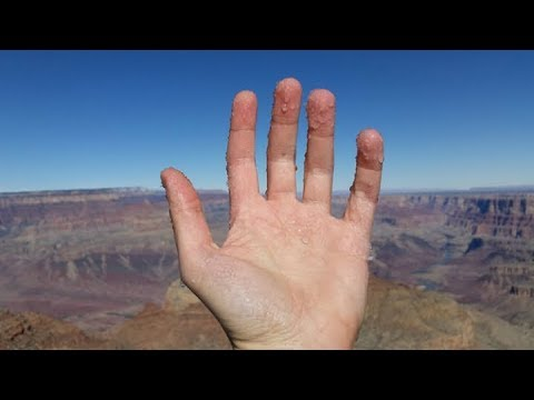 How to Stop Hands from Sweating