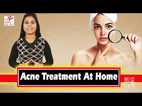 5 कारण जिनसे बार-बार हो जाते हैं मुँहासे !! Acne Treatment At Home !! Pimples (मुहाँसे) होने के कारण