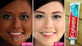 I Applied Toothpaste On My Skin & See What Happened । 7 Amazing Toothpaste Beauty Hacks।100% Working