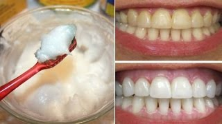 How To Whiten Your Yellow Teeth Naturally At Home Tooth Whitening