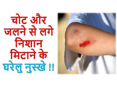 चोट और जलने से लगे निशान मिटाने के घरेलु नुस्खे || Ayurveda Home Care Hindi Tips Video 2018