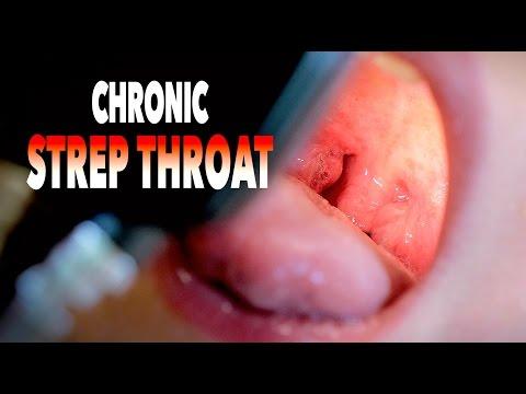CHRONIC STREP THROAT! + (Cute Baby Alert)   Dr. Paul