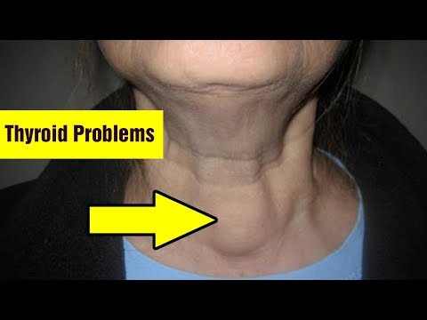 6 Ways To Heal Thyroid Problems Naturally|Get Rid of Thyroid Problems