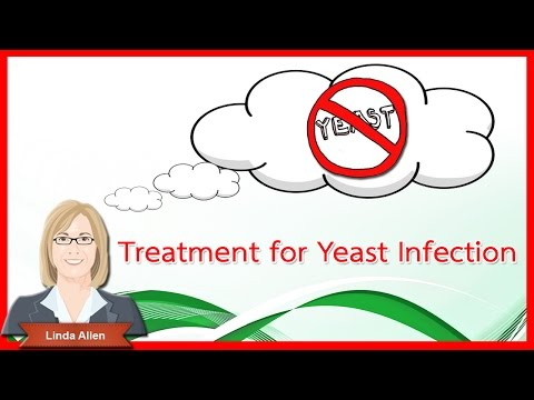 2016 What causes yeast infections and treatment for yeast infection update monistat at Phoenix AZ