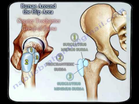 Bursitis  Around The Hip - Everything You Need To Know - Dr. Nabil Ebraheim