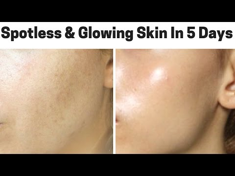 How To Get Spotless, Crystal Clear And Glowing Skin In Just 5 Days | 100% Natural Home Remedies