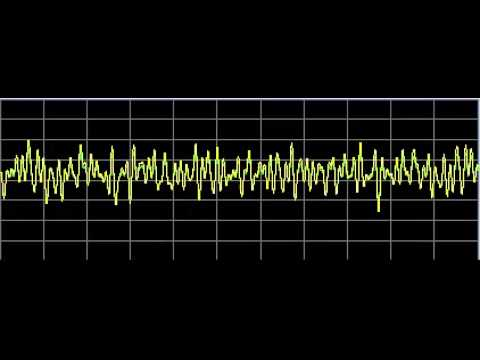 Brain Diseases - Rife Frequencies