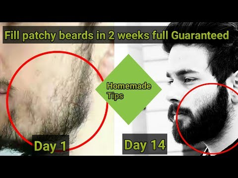 How to fill patchy beards  2017 || patchy beards fix permanently in two weeks|| 100 % guaranteed