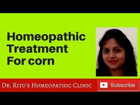 Best homeopathic treatment of corns, antimonium crudum, thuja for corns