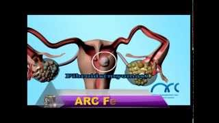Female Infertility | Treatment for Fallopian Tube Block in Chennai