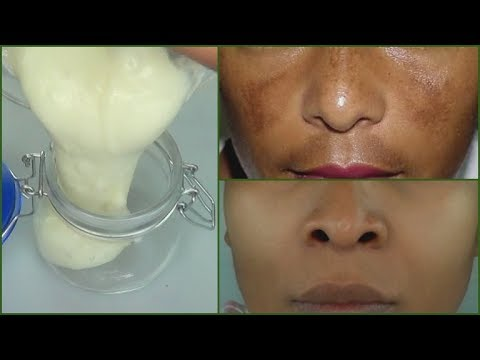 IN 7 DAYS REMOVE DARK SPOTS AND SCARS |PERMANENT DARK SPOTS + SCARS  REMOVER CREAM Khichi Beauty