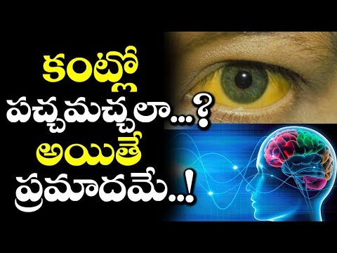 Do You Have Yellow Spots in Your Eyes? Then You Must Watch This! | Latest Updates | VTube Telugu