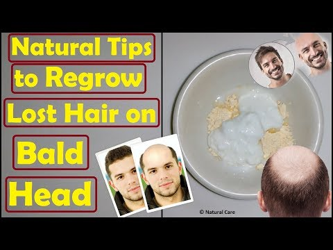 Natural Tips to Regrow Lost Hair on Bald Head