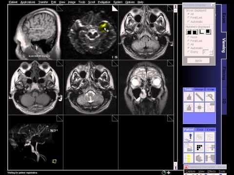 BRAIN MRI NORMAL