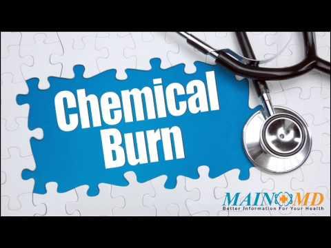 Chemical Burn ¦ Treatment and Symptoms