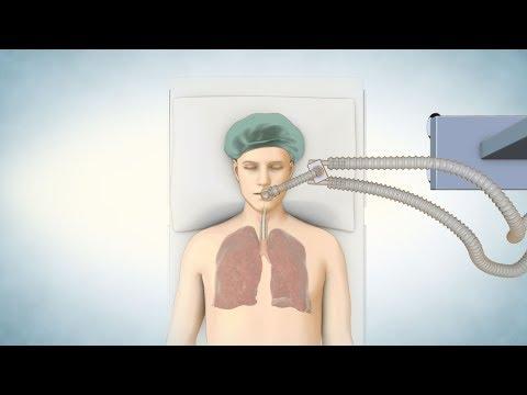 Lung Transplant Process