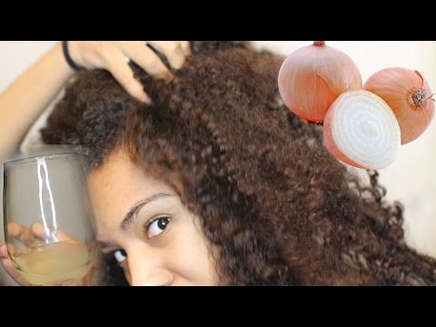 How To GROW HAIR Fast! Onion Juice for Rapid Hair Growth & Health Scalp! Natural Hair
