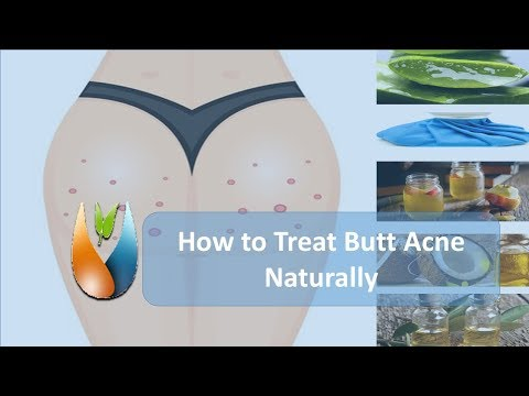 How to Treat Butt Acne Naturally