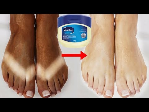 How To Remove Sun Tan Using Vaseline | Sun Tan Removal Home Remedies | 100% Effective