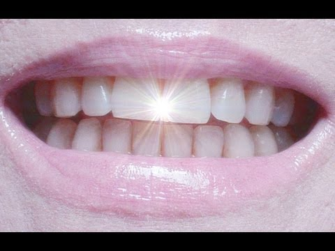 Coconut Oil-Baking Soda Teeth Whitening Update