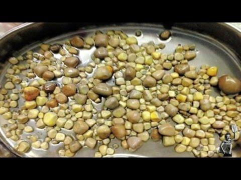 Doctors remove 420 kidney stones from patient