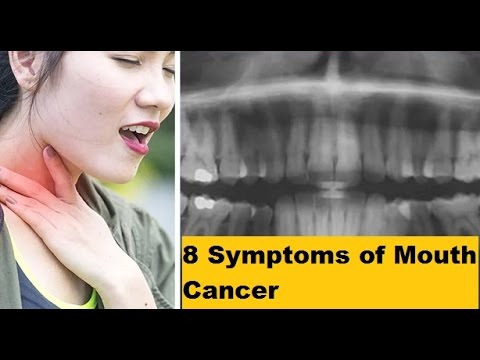 8 Symptoms of Mouth Cancer That You Need To Know Before