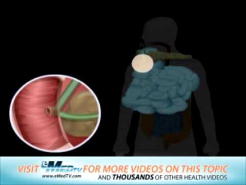 Digestive System Problems