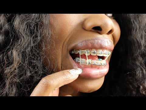 Braces Update 49 Weeks -Excruciating Pain and Double Rubber Bands