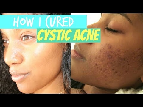How I cured Cystic ACNE!!