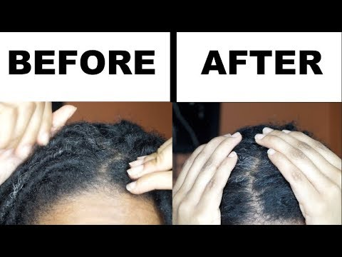 HOW TO GET RID OF DRY ITCHY SCALP IN 15 MINS WITHOUT WASHING YOUR LOCS