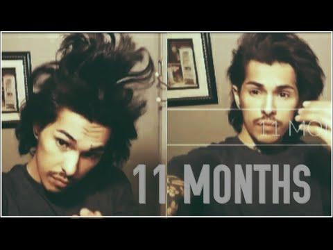 Men's Hair Growth Journey (11 Months)