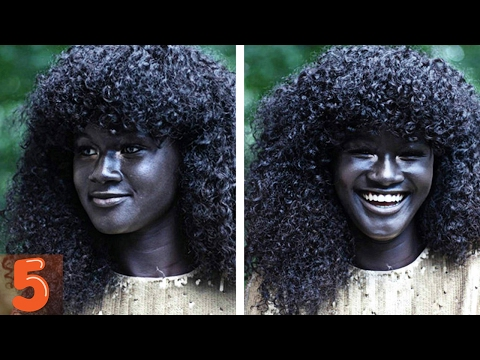 5  People With Unique Skin Colors