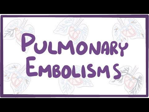 Pulmonary embolism - causes, symptoms, diagnosis, treatment, pathology