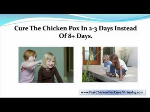 chicken pox baby - chicken pox in babies