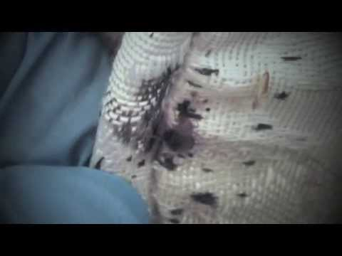 What Do Bed Bugs Look Like? | Live Examples of What Bed Bugs Look Like to the Human Eye