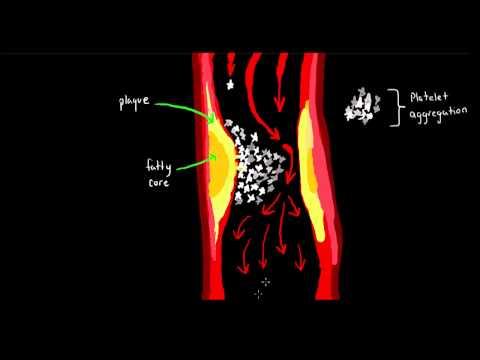 Therapeutic Applications of Monoclonal Antibodies