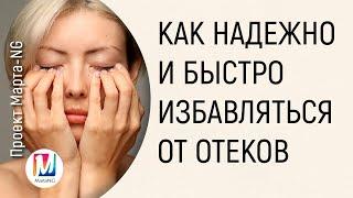 Download Как НАДЕЖНО и БЫСТРО избавляться от отеков   Марта Николаева-Гарина Video