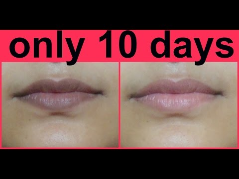 Remove Darkness From Lips Forever | Lighten Your Lips Naturally In 10 Days