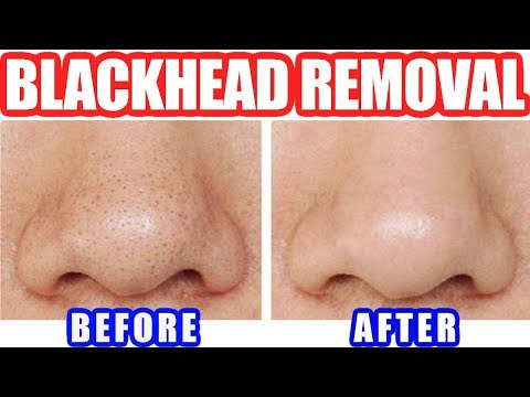 How to Remove Blackheads: Best Blackhead Removal Easy Tool