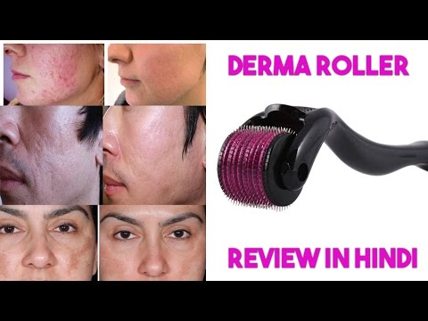 Derma Roller For Acne Scar Review In Hindi