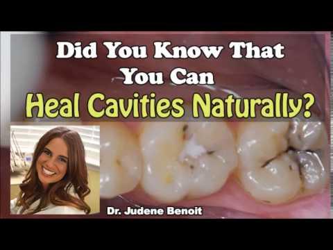 Dr. Judene Benoit - How To Heal Cavities Naturally