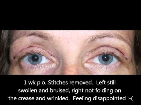 Upper blepharoplasty (eyelid lift) - recovery story with photos