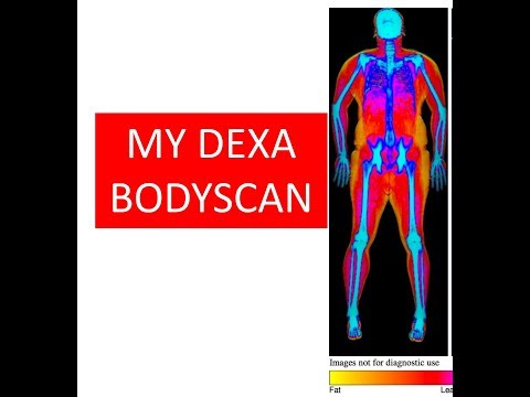 DEXA Body Scan.. My results, how much fat do i have?  do i have one leg smaller?