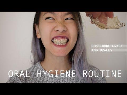 Missing Tooth: Dental Hygiene Routine