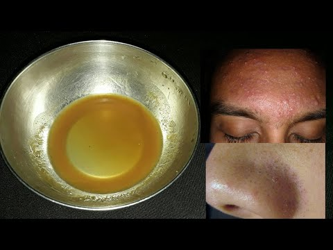 How To Get Rid Of Chin Black & Whiteheads | Best Remedy For Blackheads & Whiteheads