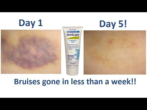 How To Get Rid Of Bruises FAST! | Arnica Gel