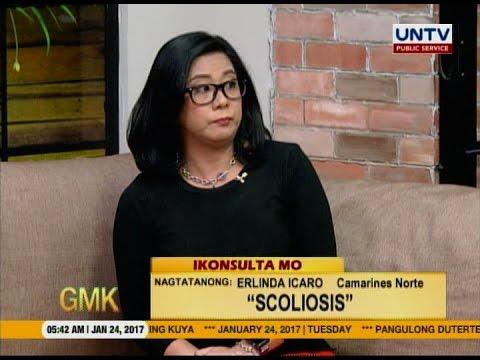 Maari bang ma-correct or magamot ang taong may mild scoliosis? (ikonsulta Mo)