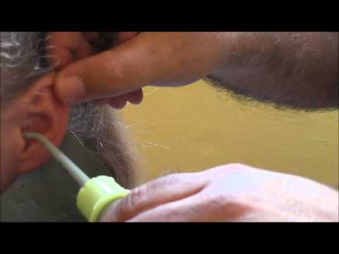 How to remove a foreign body from the ear canal