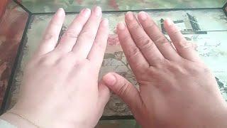 الوصفة القنبلة لتبييض اليدين والوجه والمناطق الحساسة  صورة اليدين حقيقية ماشي كذوب