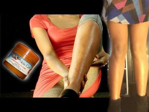 Dark Spots - Genius Way to Get Rid of Dark Spots on Legs